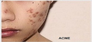 ACNE / Pimples (Facial)